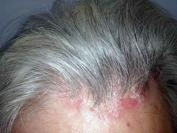 eczema alergica de contact tratament pentru varice