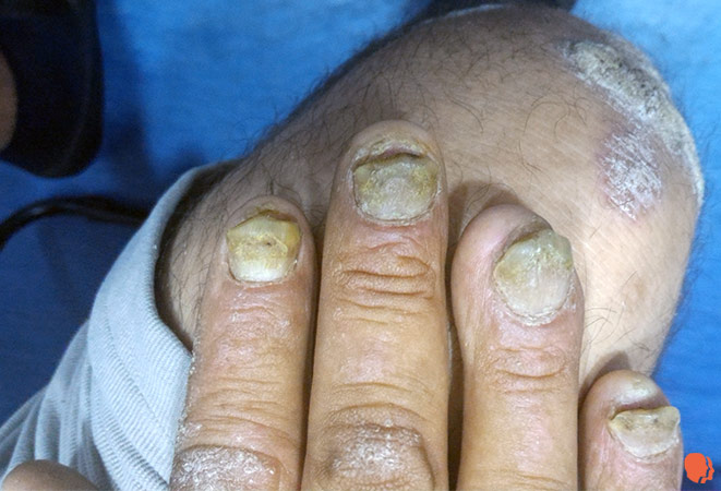 psoriazis contagios