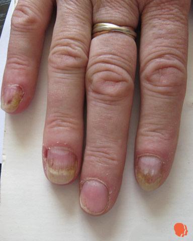 dermatita atopica mainit surigao