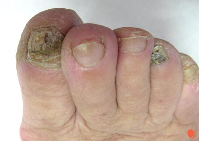 Micoza unghiala tratament solutie roc