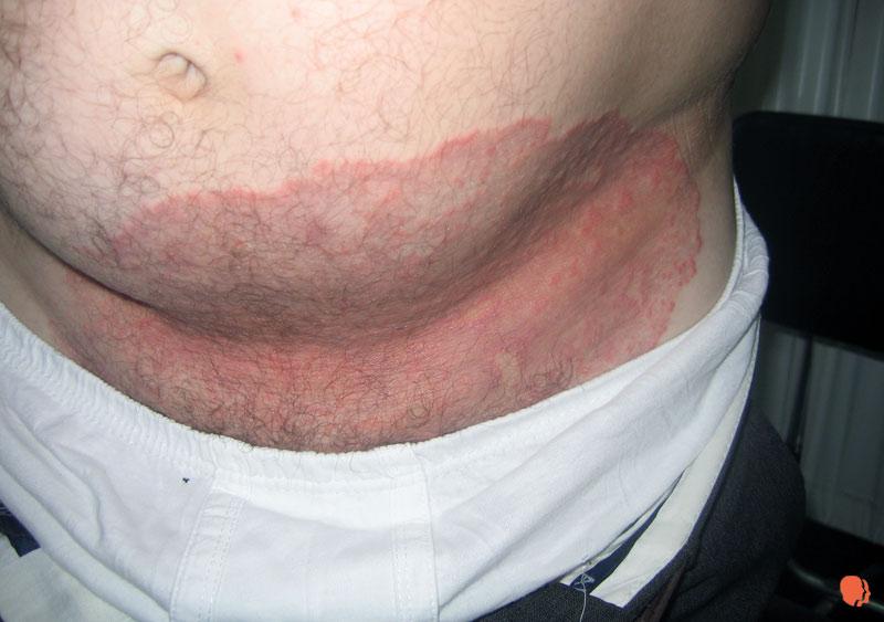 micoze a pielii tratament
