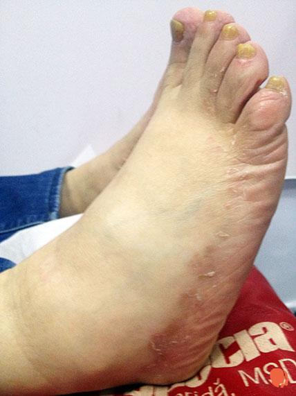 cum să clarificați pielea picioarelor în varicoză
